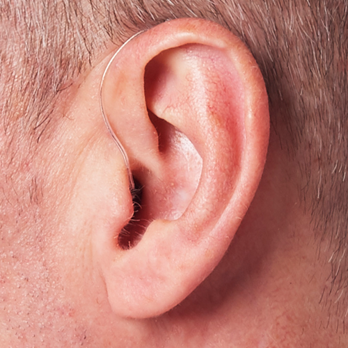 Receiver-In-Canal Hearing Aid with Artificial Intelligence Shown on Ear